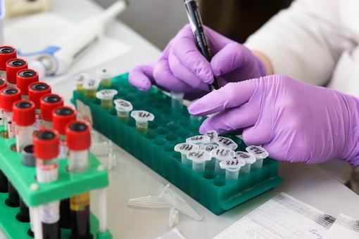 Coronavirus: salgono a 4.011 i positivi in Liguria (+88) e 685 in provincia dove ci sono 202 ospedalizzati