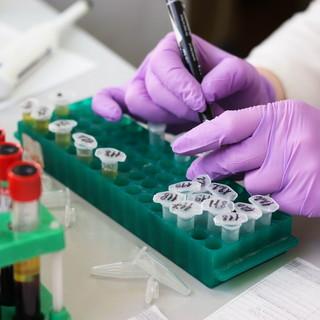Torna a salire il numero dei positivi al Coronavirus in Liguria: una persona in più nelle ultime 24 ore