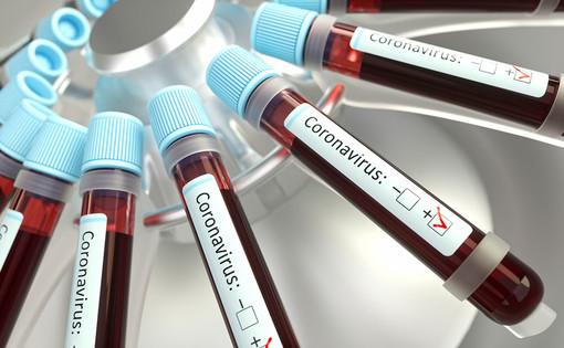 Coronavirus: tasso di positività stabile (8,91%) ma contagiati in aumento nell'imperiese (86) dove ci sono anche tre morti