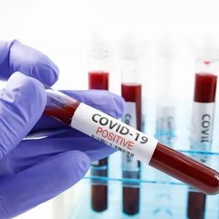 "Coronavirus, regione: ""Al via oggi call center Gaslini, 52 le telefonate ricevute"""